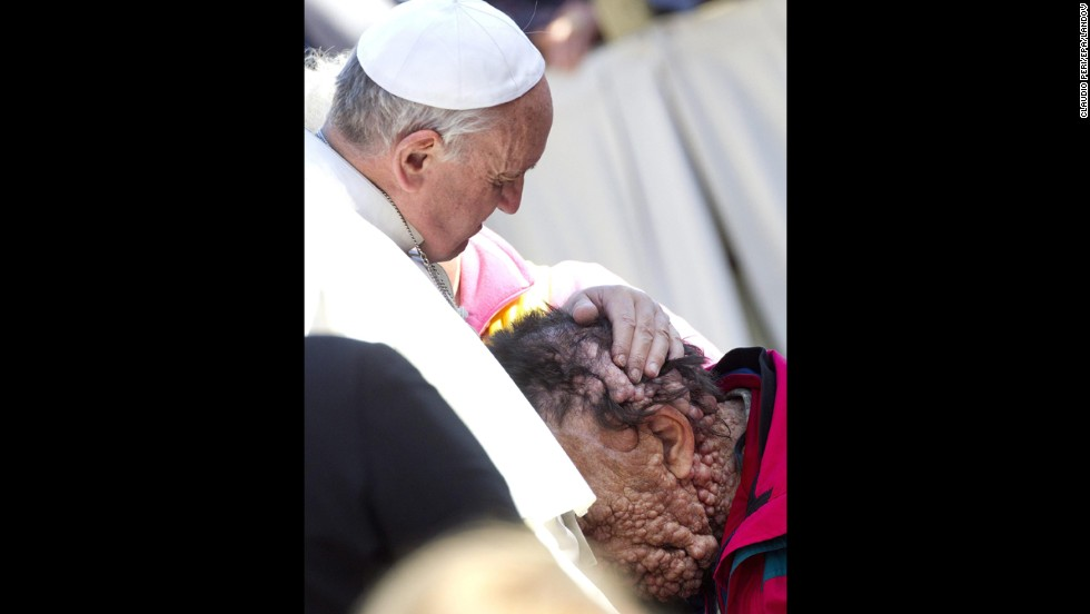 Pope Francis embraced Vinicio Riva, a disfigured man who suffers from a non-infectious genetic disease, during a public audience at the Vatican in November 2013. Riva then buried his head in the Pope's chest.